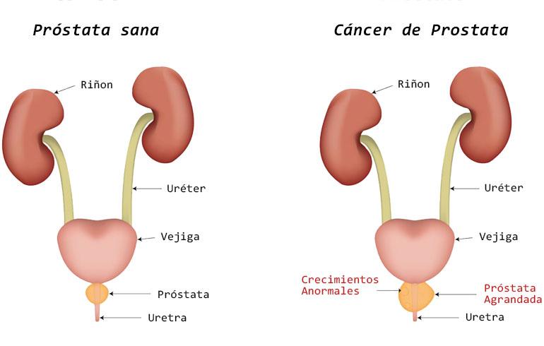 la próstata produce