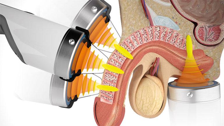 plaquetas de alta disfunción eréctil