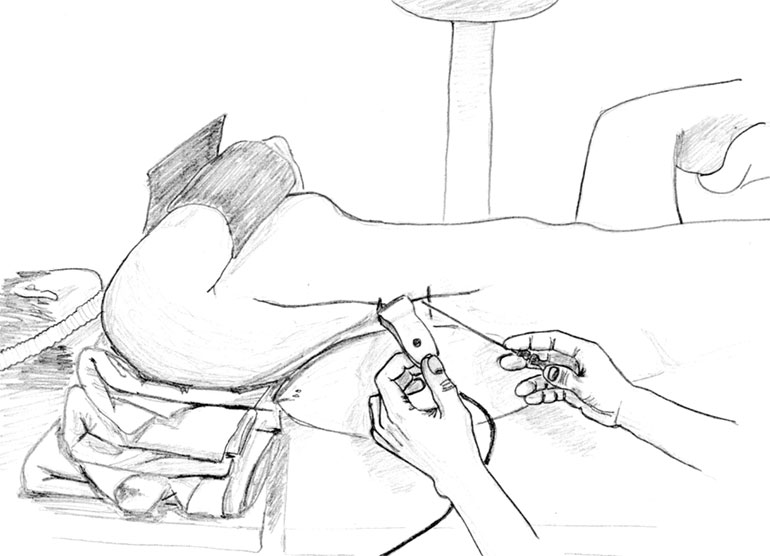 colico de rinon tratamiento